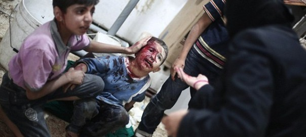 wounded_Syrian_child